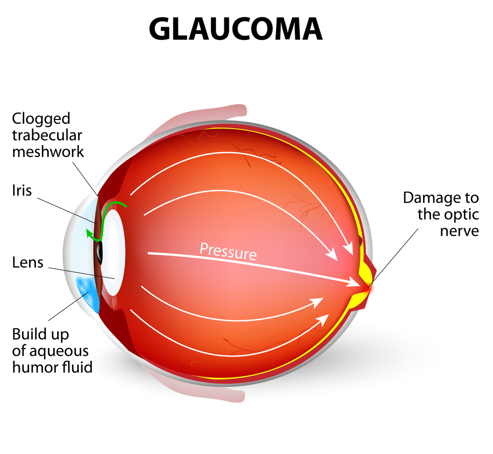 Glaucoma diagram family eye care glaucoma diagram pooptronica Image collections